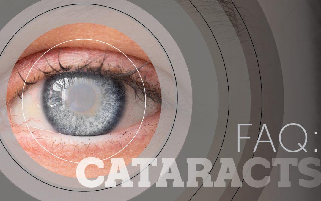 FAQ Cataracts